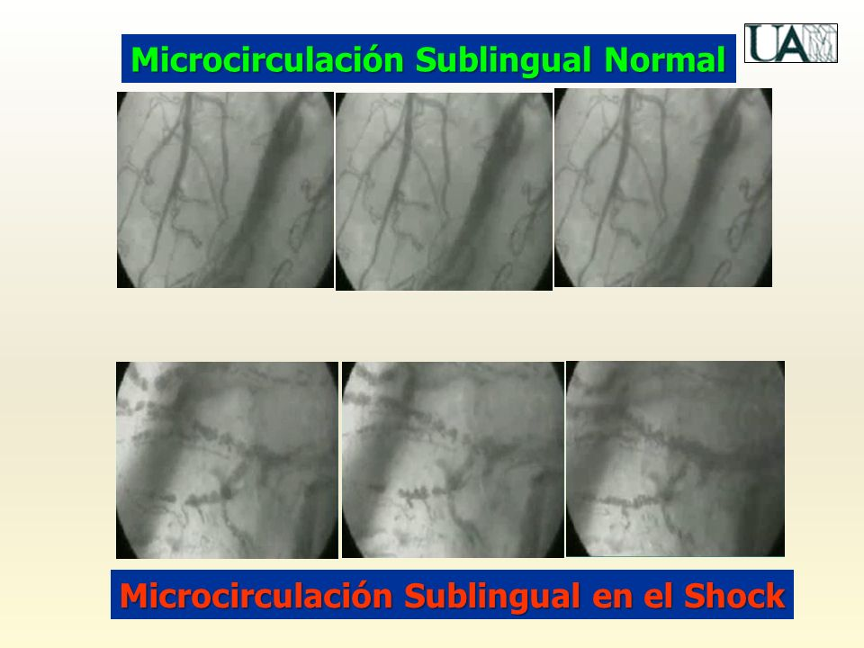 Microcirculación Sublingual Normal Microcirculación Sublingual en el Shock