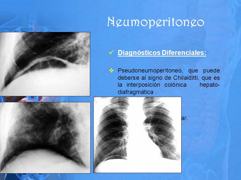 Diagnósticos Diferenciales: Pseudoneumoperitoneo, que puede deberse al signo de Chilaiditti, que es la interposición colónica hepato- diafragmática.