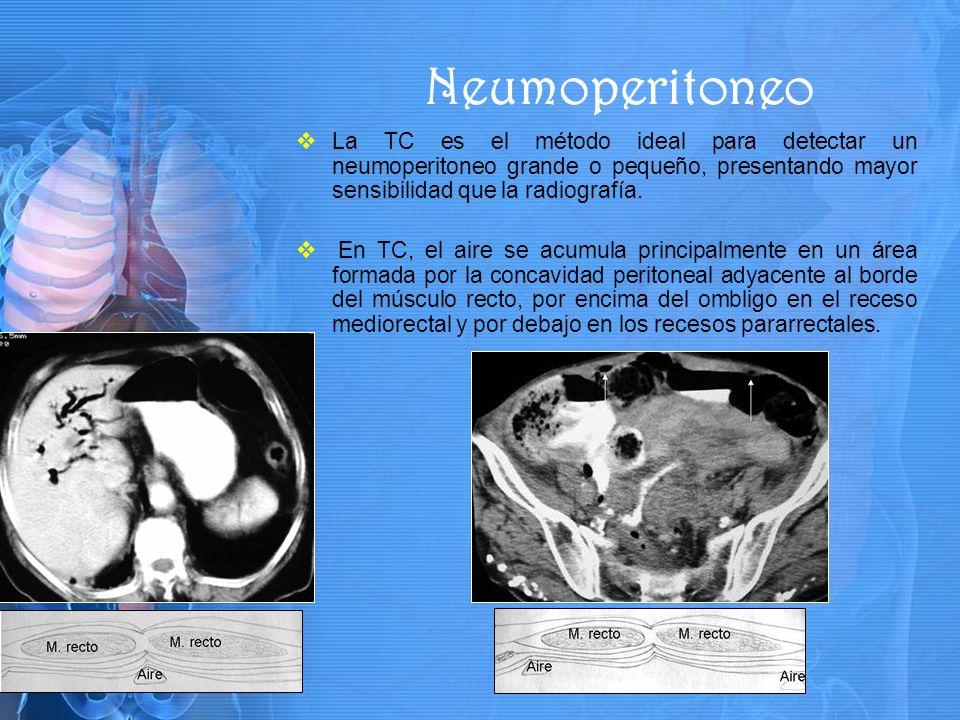 La TC es el método ideal para detectar un neumoperitoneo grande o pequeño, presentando mayor sensibilidad que la radiografía.