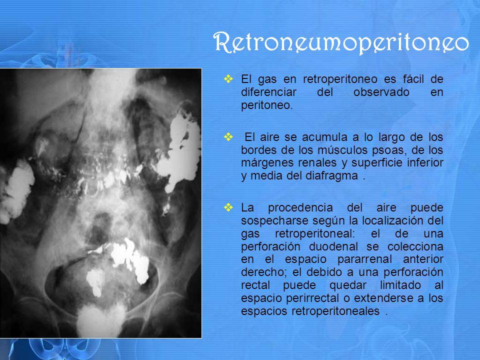 El gas en retroperitoneo es fácil de diferenciar del observado en peritoneo.