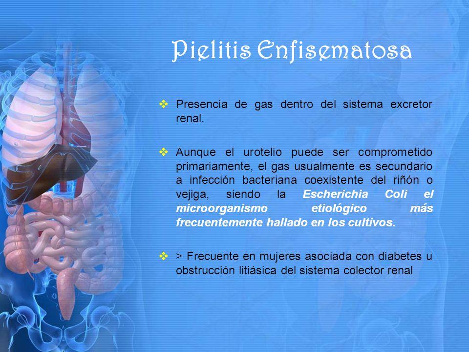 Presencia de gas dentro del sistema excretor renal.