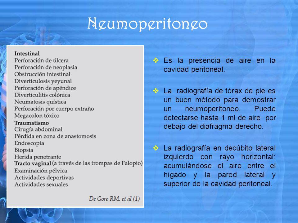 Es la presencia de aire en la cavidad peritoneal.