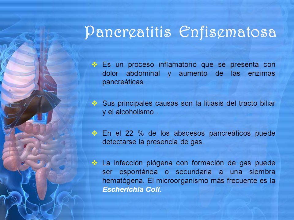 Es un proceso inflamatorio que se presenta con dolor abdominal y aumento de las enzimas pancreáticas.