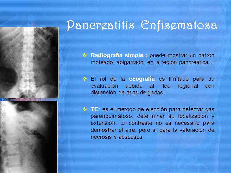 Radiografía simple : puede mostrar un patrón moteado, abigarrado, en la región pancreática.
