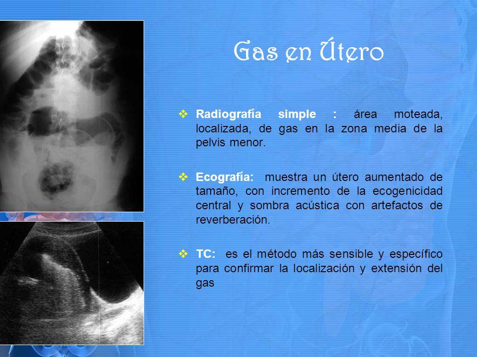 Radiografía simple : área moteada, localizada, de gas en la zona media de la pelvis menor.