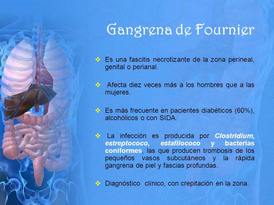 Es una fascitis necrotizante de la zona perineal, genital o perianal.