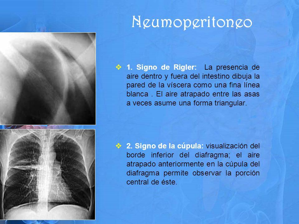 1. Signo de Rigler: La presencia de aire dentro y fuera del intestino dibuja la pared de la víscera como una fina línea blanca. El aire atrapado entre