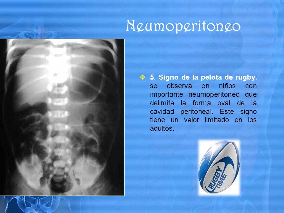 5. Signo de la pelota de rugby: se observa en niños con importante neumoperitoneo que delimita la forma oval de la cavidad peritoneal. Este signo tien