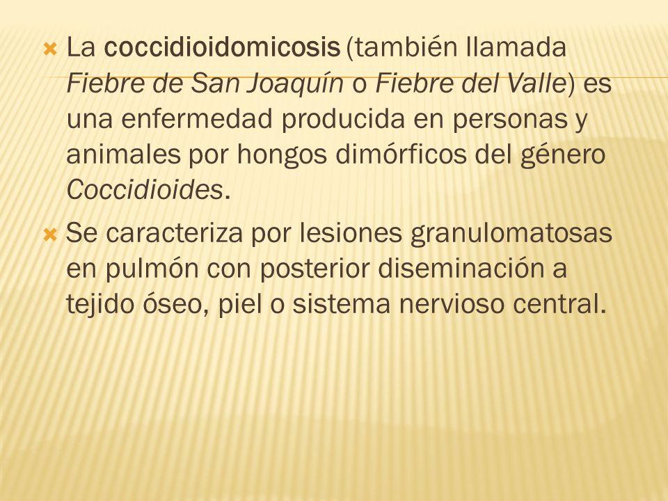 La coccidioidomicosis (también llamada Fiebre de San Joaquín o Fiebre del Valle) es una enfermedad producida en personas y animales por hongos dimórfi