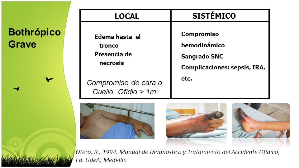 Otero, R., 1994. Manual de Diagnóstico y Tratamiento del Accidente Ofídico, Ed. UdeA, Medellín LOCAL SISTÉMICO Edema hasta el tronco Presencia de necr