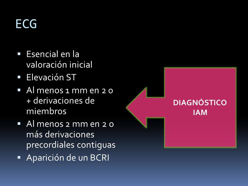 ECG Esencial en la valoración inicial Elevación ST Al menos 1 mm en 2 o + derivaciones de miembros Al menos 2 mm en 2 o más derivaciones precordiales