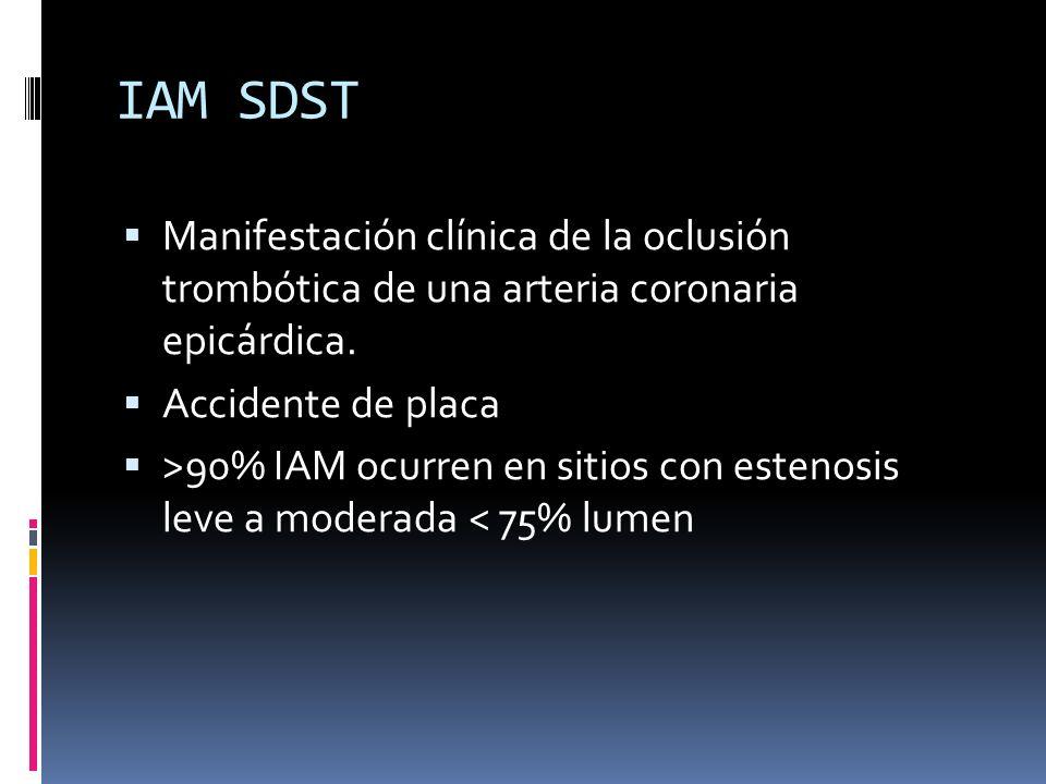 IAM SDST Manifestación clínica de la oclusión trombótica de una arteria coronaria epicárdica. Accidente de placa >90% IAM ocurren en sitios con esteno