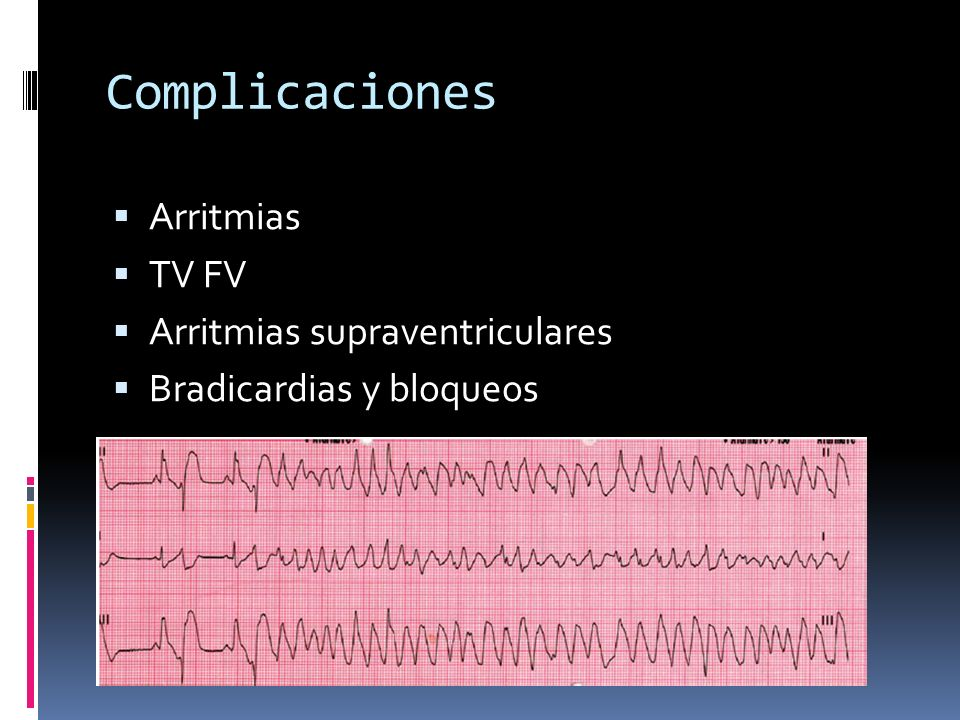Complicaciones Arritmias TV FV Arritmias supraventriculares Bradicardias y bloqueos