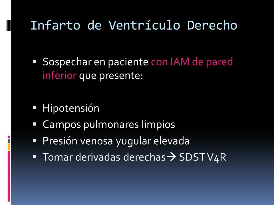 Infarto de Ventrículo Derecho Sospechar en paciente con IAM de pared inferior que presente: Hipotensión Campos pulmonares limpios Presión venosa yugul