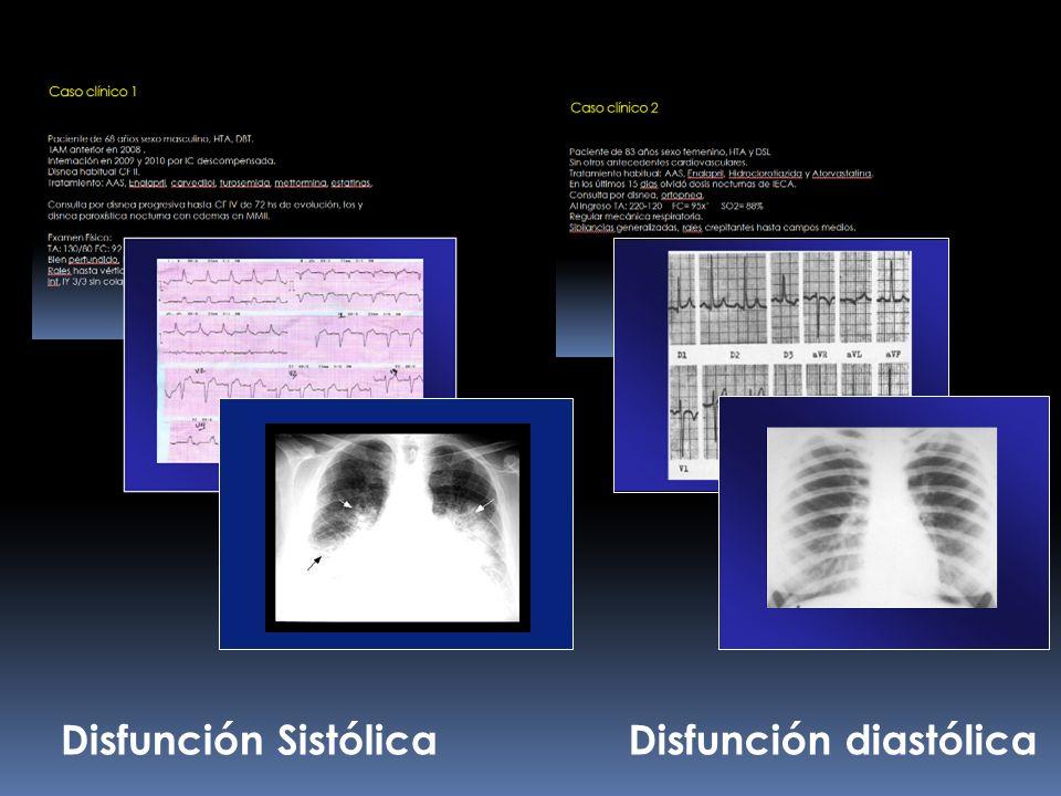 Disfunción SistólicaDisfunción diastólica