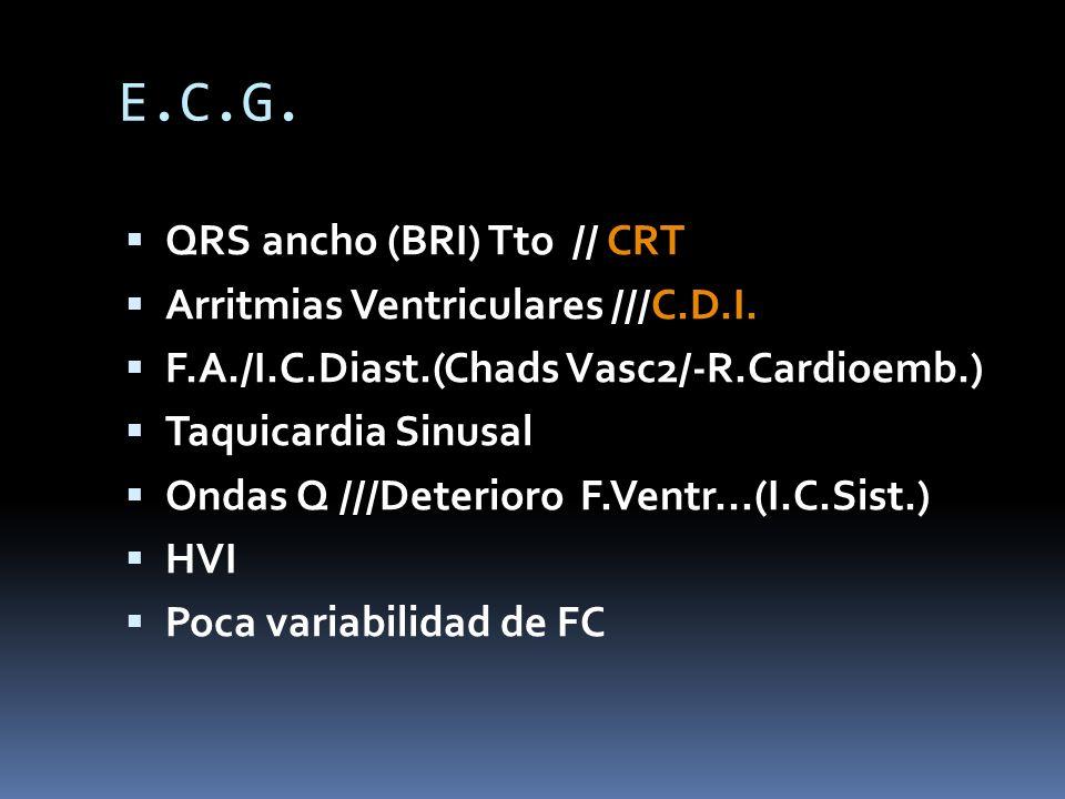 E.C.G. QRS ancho (BRI) Tto // CRT Arritmias Ventriculares ///C.D.I. F.A./I.C.Diast.(Chads Vasc2/-R.Cardioemb.) Taquicardia Sinusal Ondas Q ///Deterior