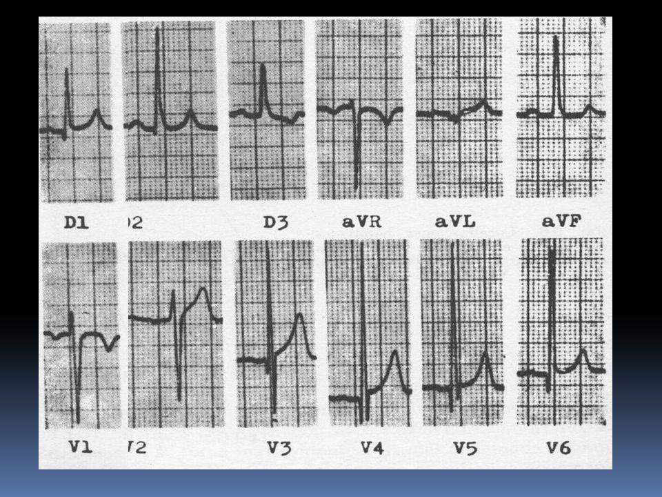 Analisis ECG/ I.C.1No agrega informacion pronostica 2.