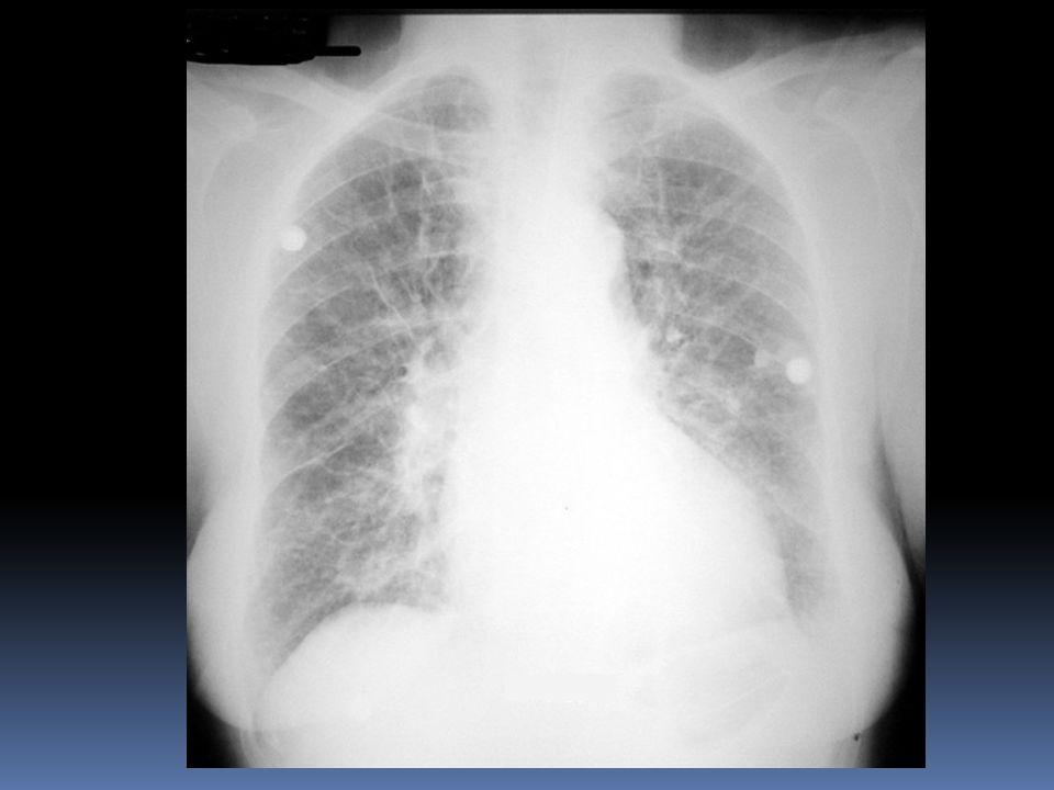 Rendimiento Diagnostico CLinico de IC 1.Sintomas de Disnea 2.