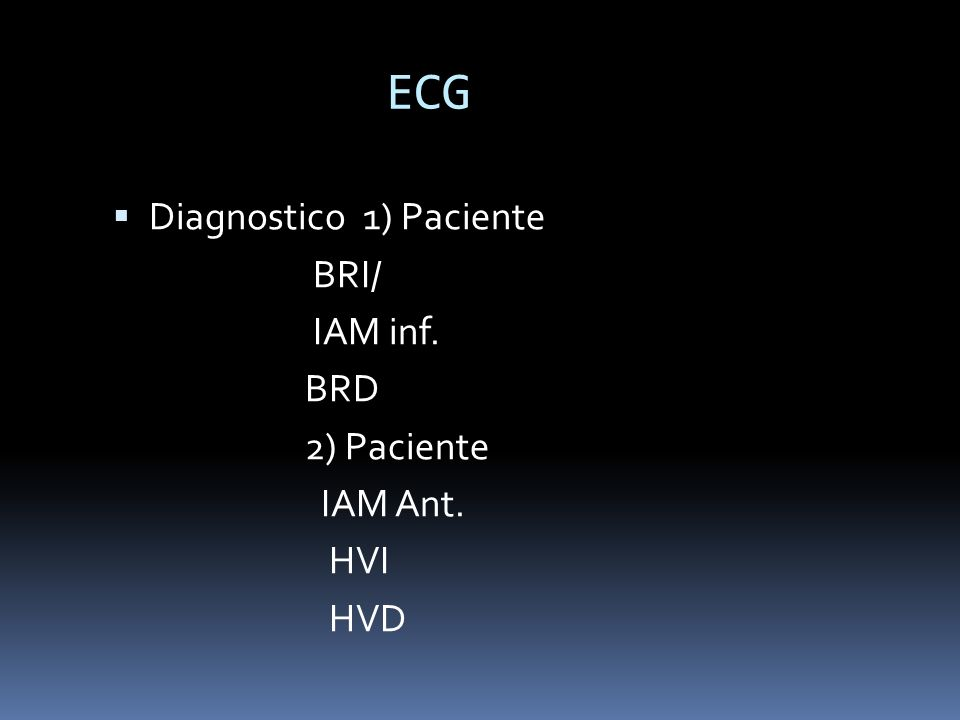 ECG Diagnostico 1) Paciente BRI/ IAM inf. BRD 2) Paciente IAM Ant. HVI HVD