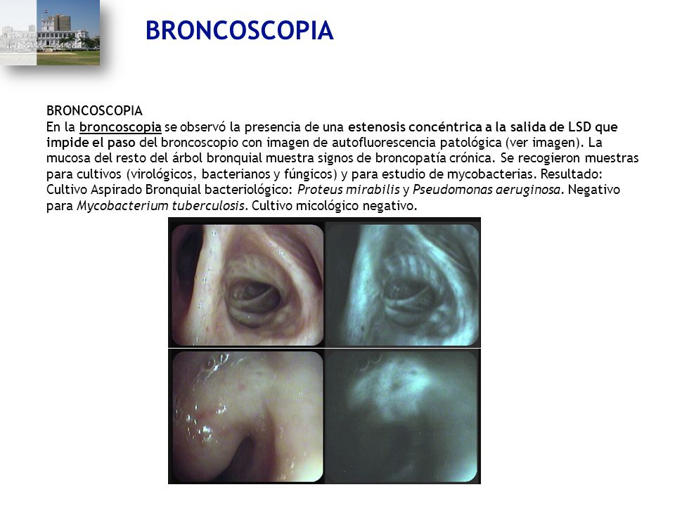 BRONCOSCOPIA En la broncoscopia se observó la presencia de una estenosis concéntrica a la salida de LSD que impide el paso del broncoscopio con imagen