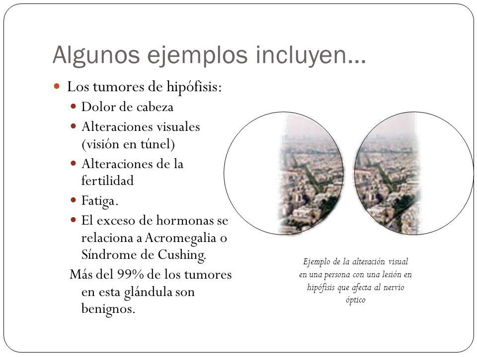 Algunos ejemplos incluyen… Los tumores de hipófisis: Dolor de cabeza Alteraciones visuales (visión en túnel) Alteraciones de la fertilidad Fatiga. El