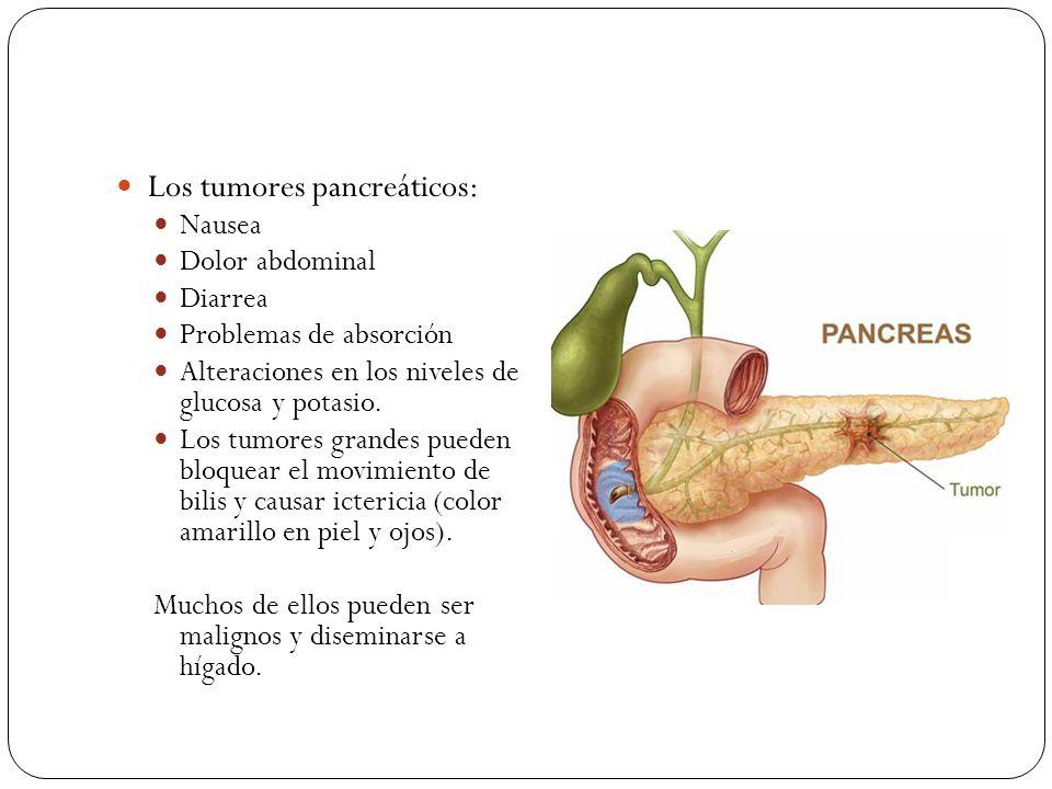 Los tumores pancreáticos: Nausea Dolor abdominal Diarrea Problemas de absorción Alteraciones en los niveles de glucosa y potasio. Los tumores grandes