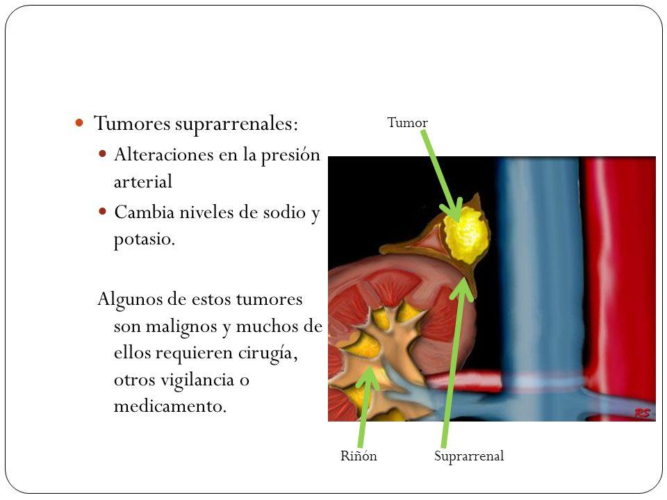 Tumores suprarrenales: Alteraciones en la presión arterial Cambia niveles de sodio y potasio. Algunos de estos tumores son malignos y muchos de ellos