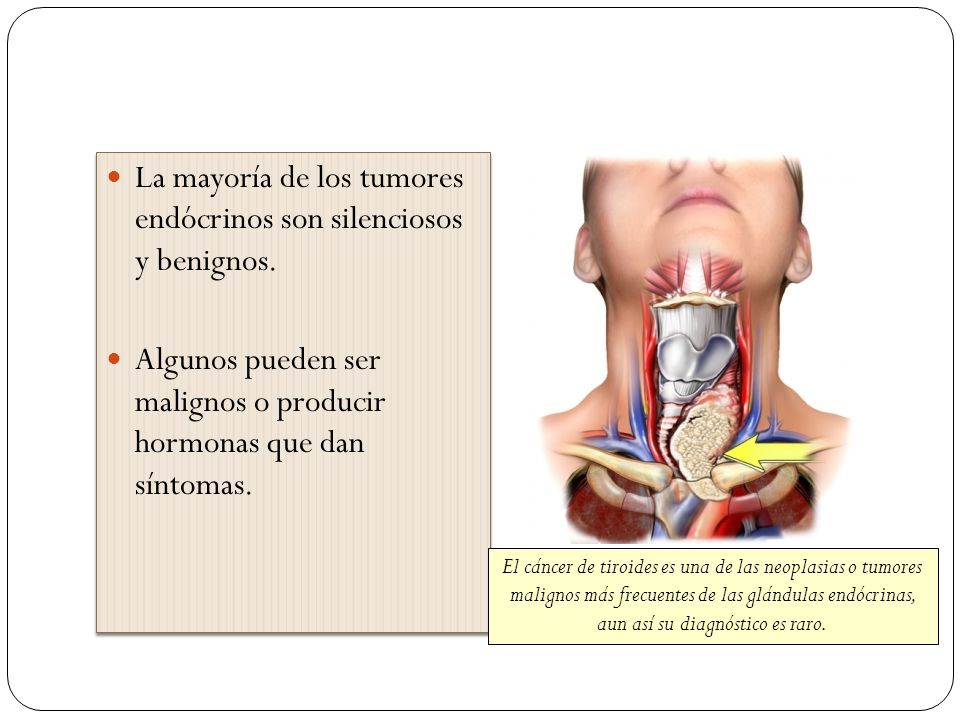 La mayoría de los tumores endócrinos son silenciosos y benignos. Algunos pueden ser malignos o producir hormonas que dan síntomas. La mayoría de los t