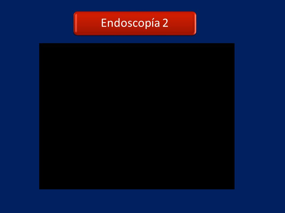 Endoscopía 2