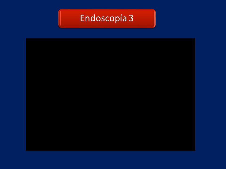 Endoscopía 3