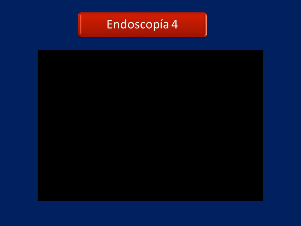 Endoscopía 4