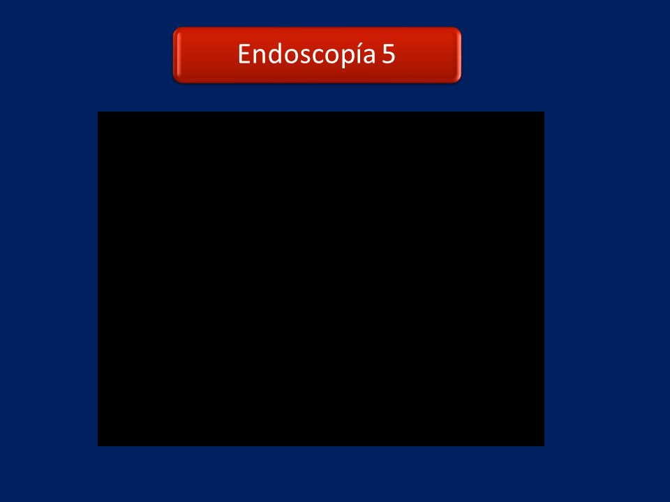 Endoscopía 5