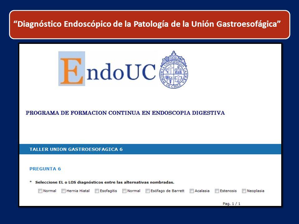 Diagnóstico Endoscópico de la Patología de la Unión Gastroesofágica