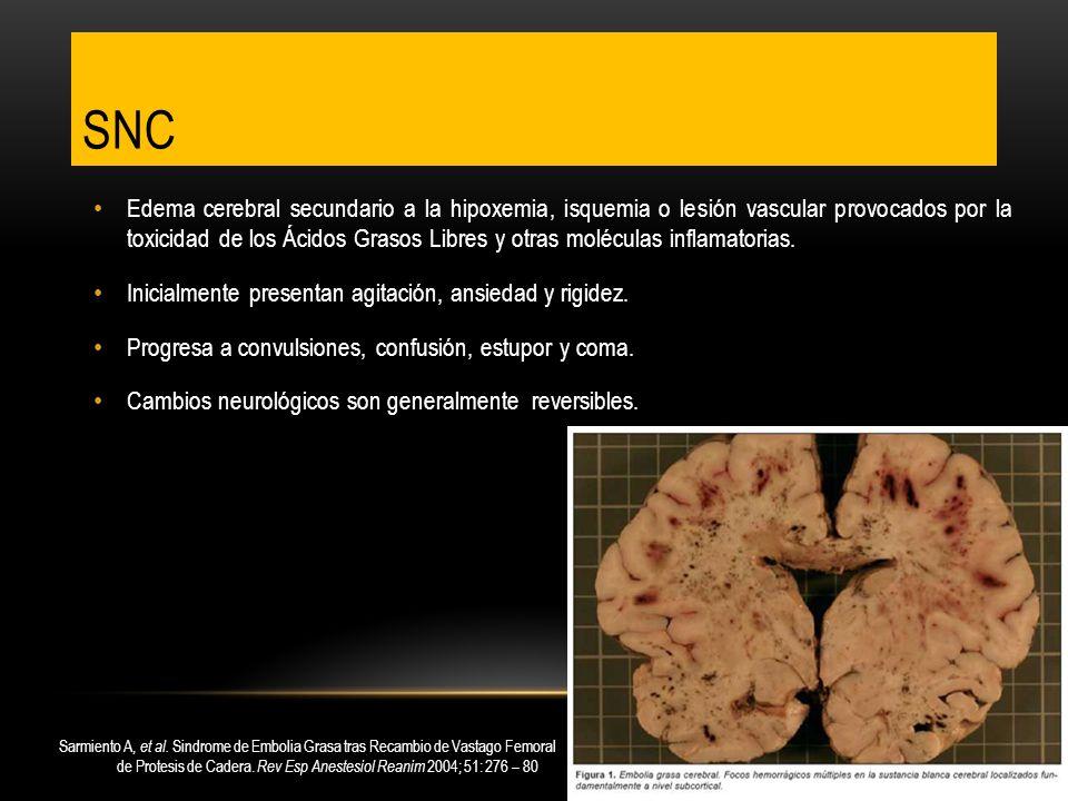 Edema cerebral secundario a la hipoxemia, isquemia o lesión vascular provocados por la toxicidad de los Ácidos Grasos Libres y otras moléculas inflama