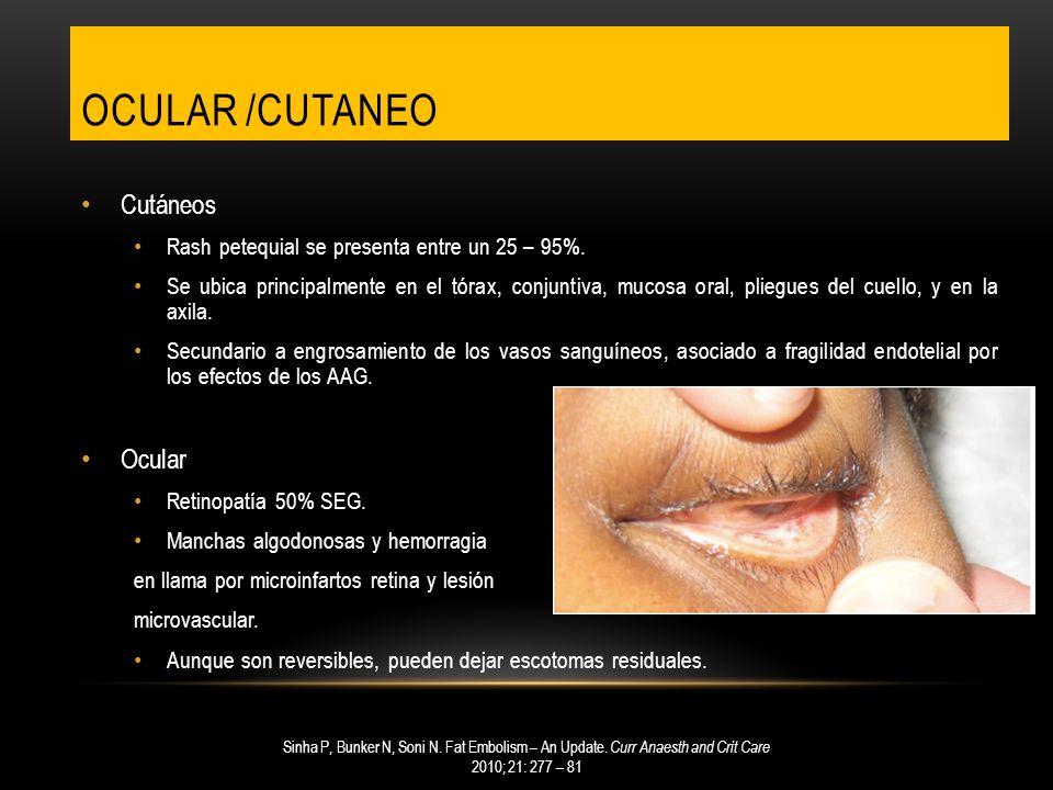 OCULAR /CUTANEO Cutáneos Rash petequial se presenta entre un 25 – 95%. Se ubica principalmente en el tórax, conjuntiva, mucosa oral, pliegues del cuel