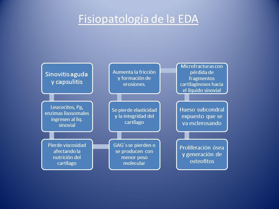 Fisiopatología de la EDA Sinovitis aguda y capsulitis Leucocitos, Pg, enzimas lisosomales ingresen al liq.
