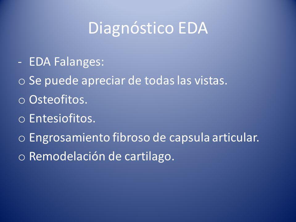 Diagnóstico EDA -EDA Falanges: o Se puede apreciar de todas las vistas.