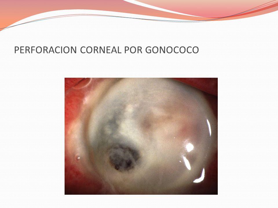 PERFORACION CORNEAL POR GONOCOCO
