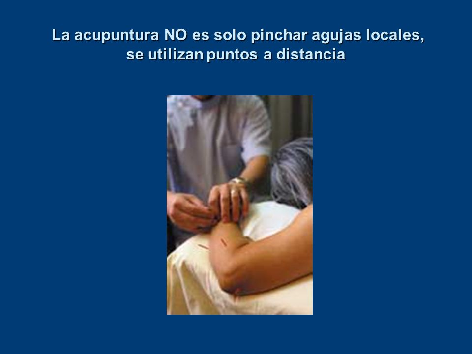 La acupuntura NO es solo pinchar agujas locales, se utilizan puntos a distancia La acupuntura NO es solo pinchar agujas locales, se utilizan puntos a