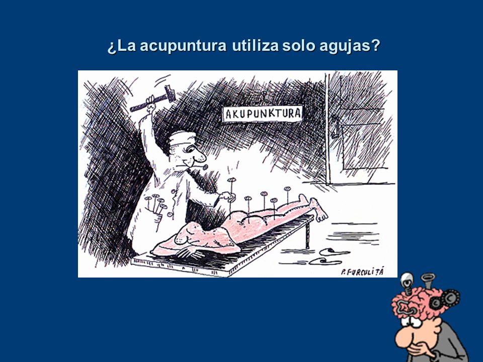 ¿La acupuntura utiliza solo agujas? ¿La acupuntura utiliza solo agujas?