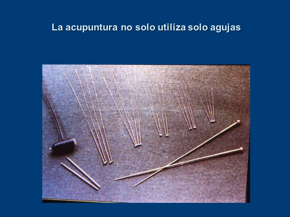 La acupuntura no solo utiliza solo agujas La acupuntura no solo utiliza solo agujas