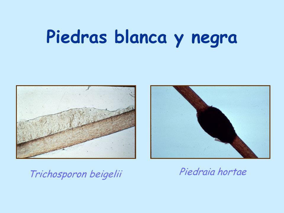 Piedras blanca y negra Trichosporon beigelii Piedraia hortae