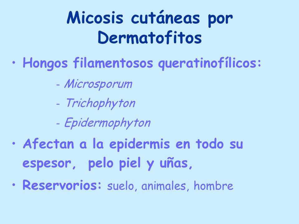 Micosis cutáneas por Dermatofitos Hongos filamentosos queratinofílicos: - Microsporum - Trichophyton - Epidermophyton Afectan a la epidermis en todo s