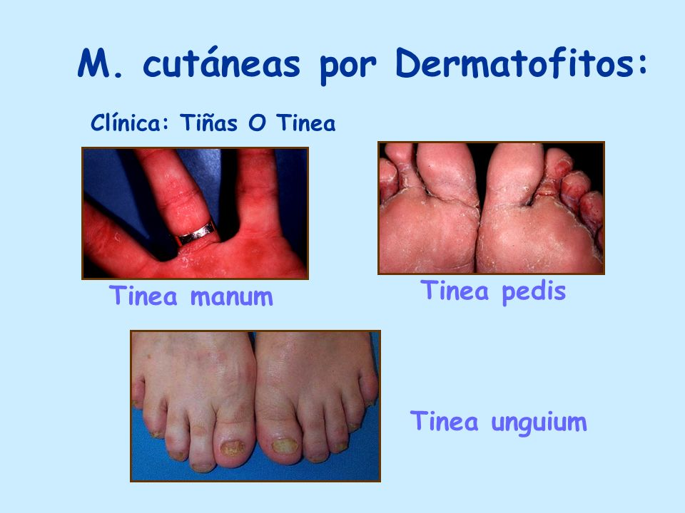 M. cutáneas por Dermatofitos: Tinea manum Tinea pedis Tinea unguium Clínica: Tiñas O Tinea