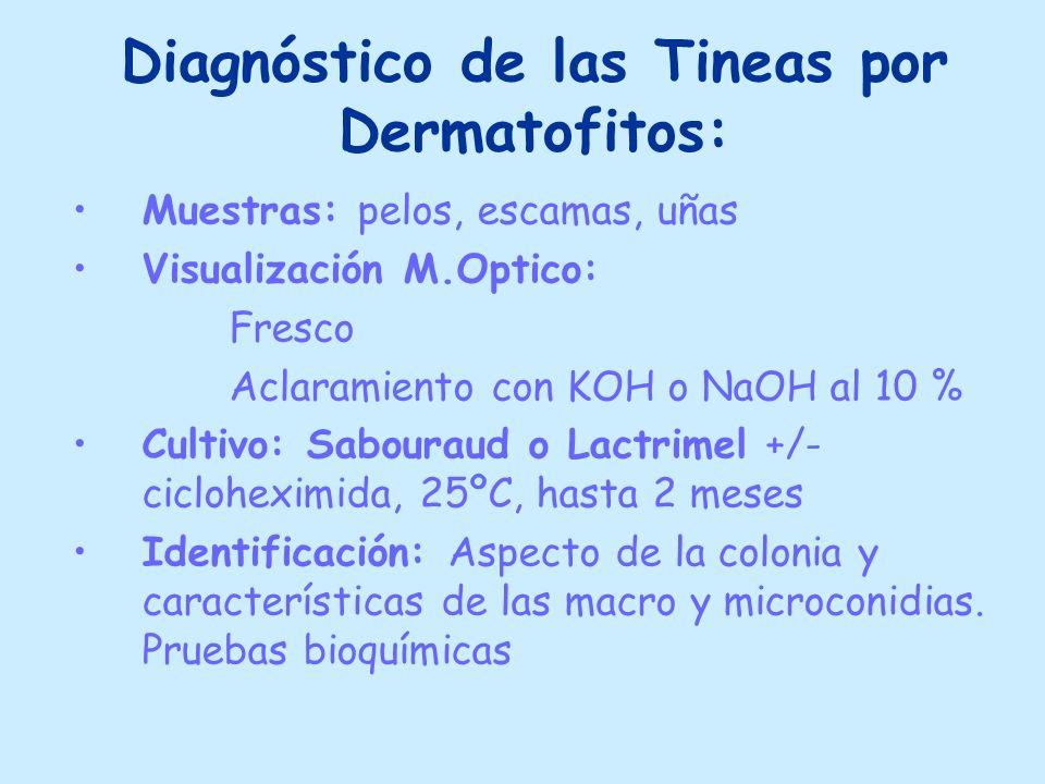 Diagnóstico de las Tineas por Dermatofitos: Muestras: pelos, escamas, uñas Visualización M.Optico: Fresco Aclaramiento con KOH o NaOH al 10 % Cultivo: