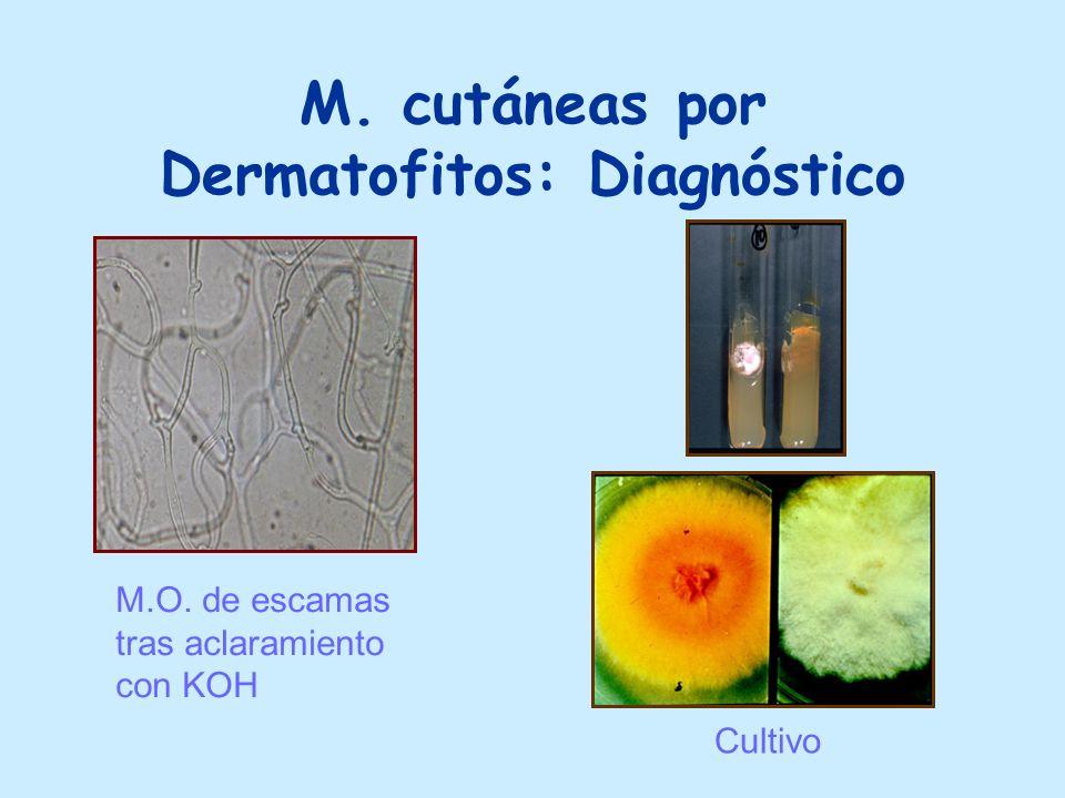 M. cutáneas por Dermatofitos: Diagnóstico M.O. de escamas tras aclaramiento con KOH Cultivo