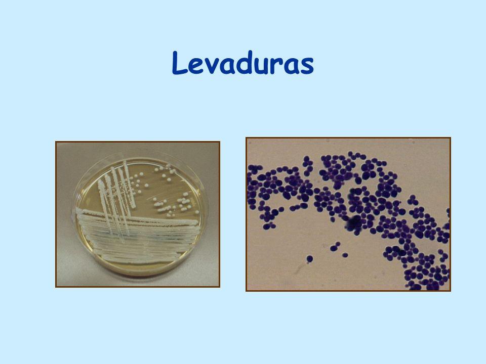 M. Sistémicas por hongos dimórficos