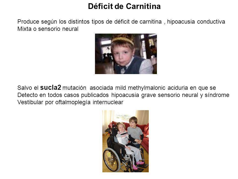 Produce según los distintos tipos de déficit de carnitina, hipoacusia conductiva Mixta o sensorio neural Salvo el sucla2 mutación asociada mild methyl