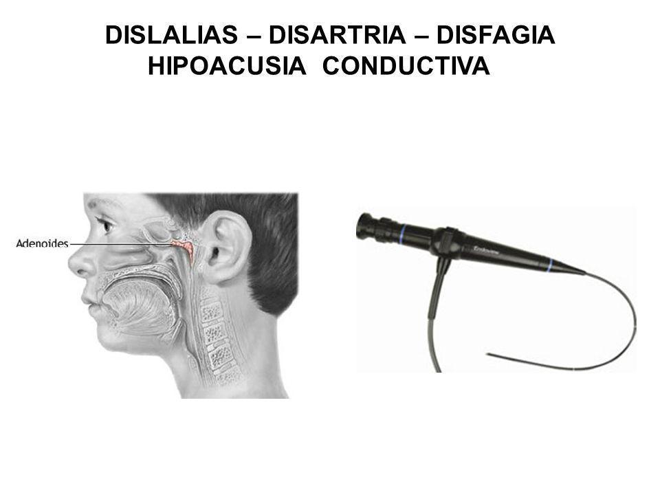DISLALIAS – DISARTRIA – DISFAGIA HIPOACUSIA CONDUCTIVA
