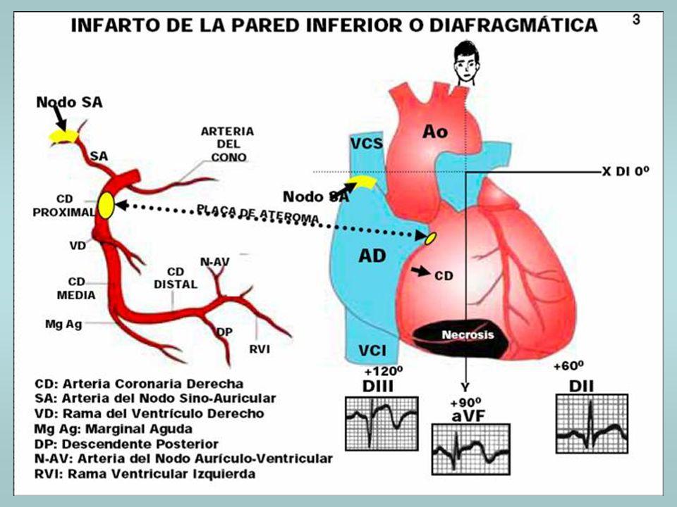 DIAGNÓSTICO DE ISQUEMIA E INFARTO EN PRESENCIA DE TRASTORNOS DE LA CONDUCCIÓN INTRAVENTRICULAR